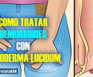 TRATAMIENTO PARA LA HEMORROIDE CON GANODERMA LUCIDUM DXN